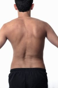 adult-scoliosis-examination