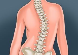 townsville-chiropractor-treating-back-pain