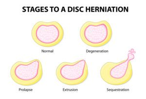 stages to a disc herniation. Normal, Degeneration, Prolapse, Extrusion, Sequestration
